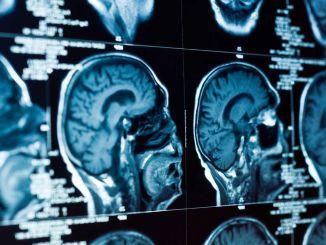کون سی علامات بچوں میں دماغ کے ٹیومر کی طرف اشارہ کرتی ہیں؟