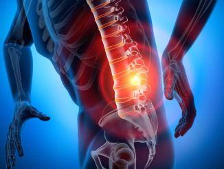 Quais são as causas, sintomas e métodos de tratamento da hérnia lombar?