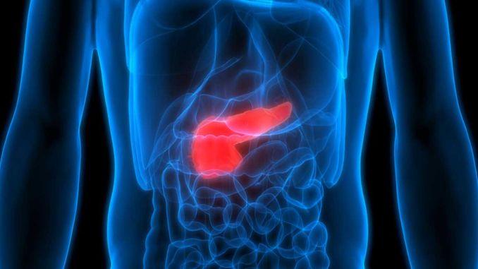 Каждый год тысячи туркменов заболевают раком поджелудочной железы.